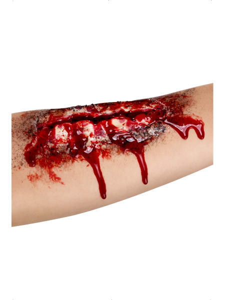 Open Wound Latex Scar